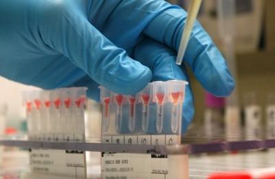 Informe: El Mercado del sistema de seguimiento de sangre superará los USD 175 millones en el 2019